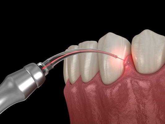Laser Gum Depigmentation