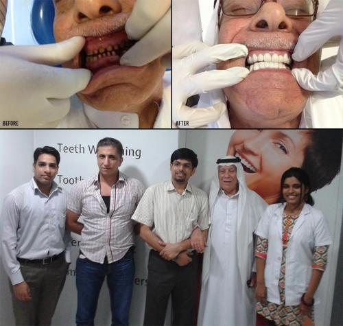Before and After Picture of Our Patient